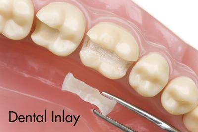 Porcelain Dental Inlay